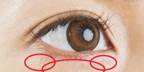 「経結膜脱脂術」の画像検索結果