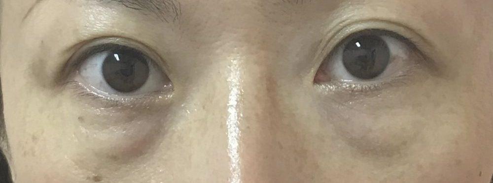 目の下のふくらみ取り(経結膜的下眼瞼脱脂術)施術前