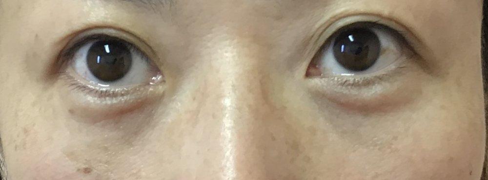 目の下のふくらみ取り(経結膜的下眼瞼脱脂術)施術後