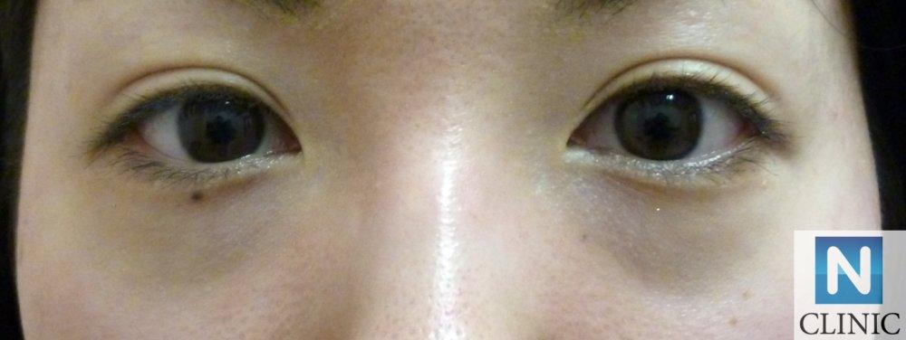 目の下のふくらみ取り 手術前