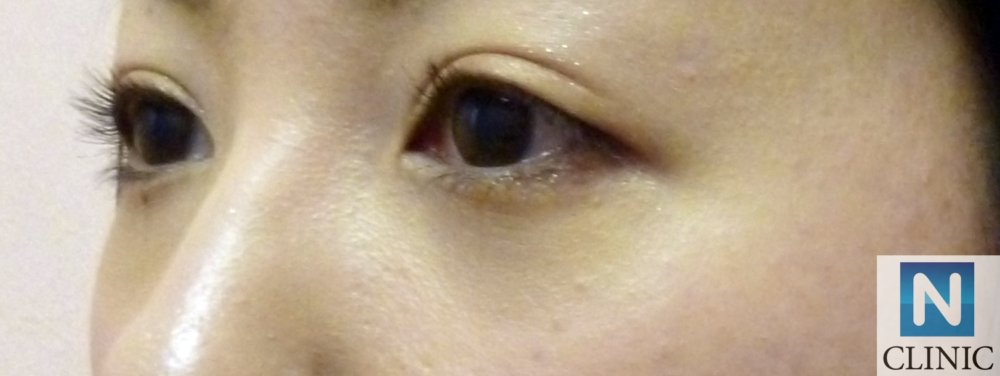 目の下のふくらみ取り 手術後